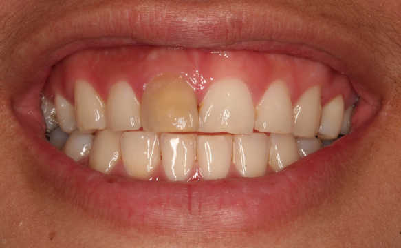 Discolored Tooth Gover Dentistry