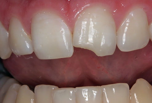 Drtomfoley Photo Of Chipped Tooth